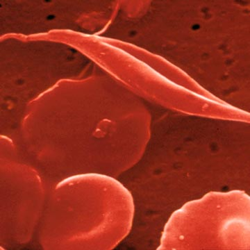 """sicklecell Why Gay Men Don't Get Fat. """"Still, gay men come in all shapes and sizes ..."""